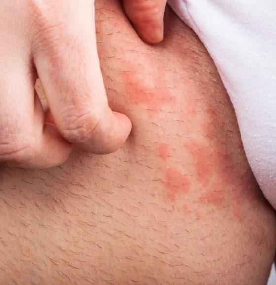 Eczema groin atopic dermatitis symptom of skin texture